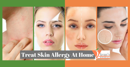 Treat Skin Allergy At Home